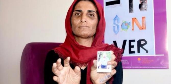 Yıllarca işkence gören kadına bakanlık sahip çıktı