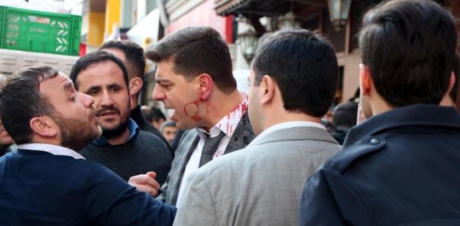 Şişli'de cadde ortasında kan gövdeyi götürdü!